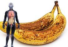 Eat Banana Black Spots: