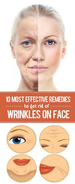 Wrinkles Remedies: