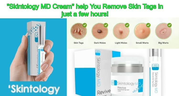 SkinTology MD Reviews : Skintology MD Where To Buy, Does It Work?