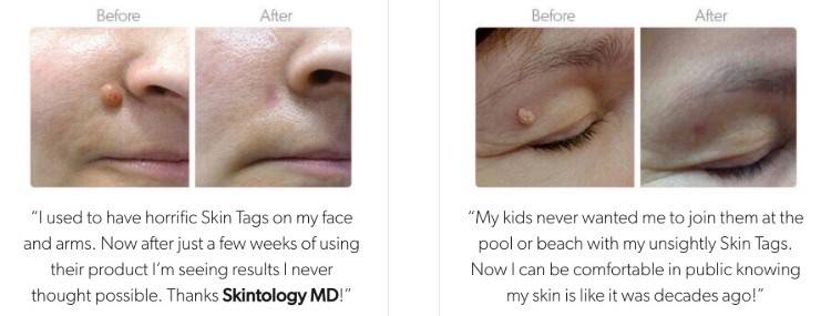 skintology md before and after