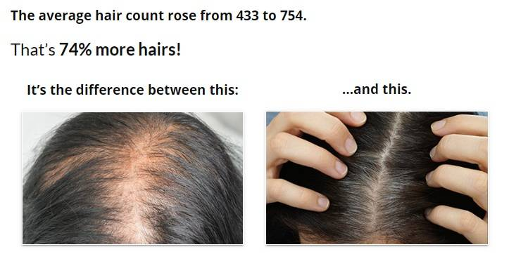 Best Hair Loss Treatments for Men: Proven Ways To Regrow Hair