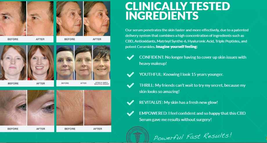 cbd oil for wrinkles before and after- CBD Anti-Aging Skin Care : Best CBD Skin Care For Acne,Wrinkles